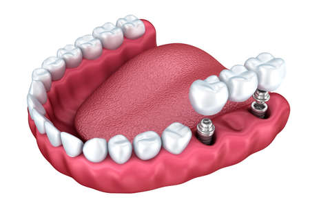 titanium: 3D rendering: lower teeth and dental implant transparent render isolated on white