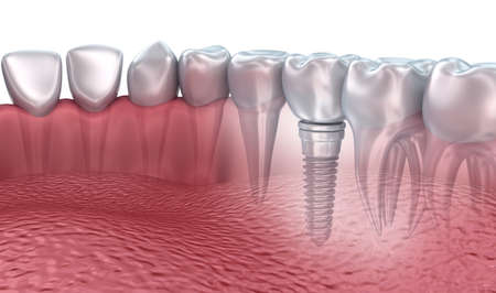 implanted: 3D rendering: lower teeth and dental implant transparent render isolated on white