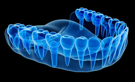 X-ray view of denture with implant 스톡 콘텐츠