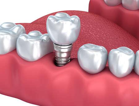 Dental implant Close-up. 3D rendering
