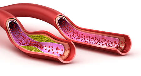 vessel: Blood vessel: normal and cholesterol damaged vessel. 3D render