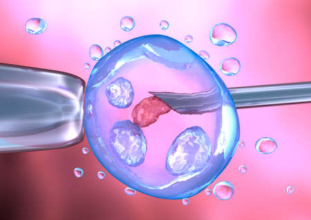 reproductive technology: Artificial insemination process