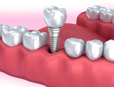 Tooth menschliche Implantat, medizinisch genaue 3D-Darstellung Standard-Bild - 67037516