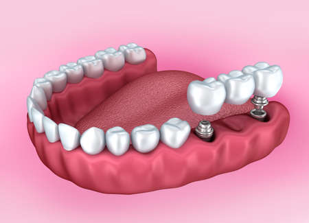 Lower teeth and dental implant isolated on white. Medically accurate 3D illustration Stock Photo