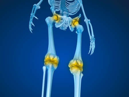 scaner: Human skeleton and damajed joints. Medically accurate 3D illustration Stock Photo
