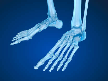 arthralgia: skeletal foot, Medically accurate 3D illustration
