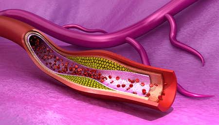 placa bacteriana: Placa de colesterol en los vasos sanguíneos, la ilustración médica precisa en 3D
