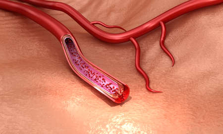Blood vessel sliced ??macro with erythrocytes, Medically accurate 3D illustration