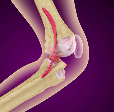 cartilage: Osteoporosis of the knee joint, Medically accurate 3D illustration Stock Photo