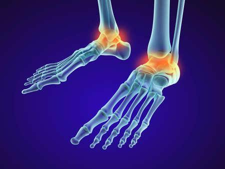 luxacion: Esqueleto del pie - hueso astrágalo injuryd. vista de la radiografía. ilustración médica precisa en 3D
