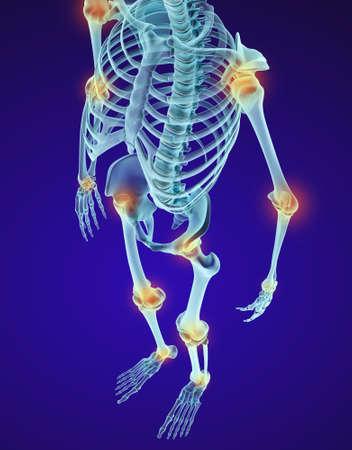 karkas: Menselijk skelet en damajed gewrichten. Xray uitzicht. Medisch nauwkeurige 3D illustratie