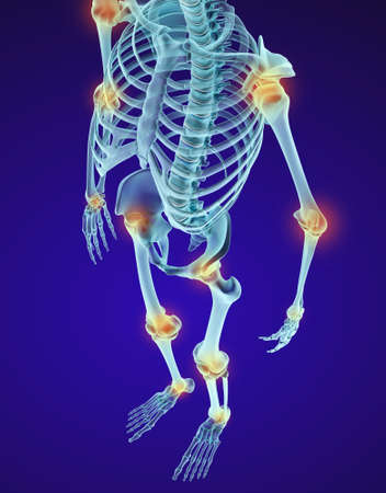 Human skeleton and damajed joints. Xray view. Medically accurate 3D illustration
