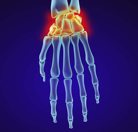 sprain: Human wrist anatomy. Xray view. Medically accurate 3D illustration