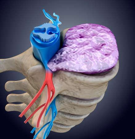 medula espinal: la médula espinal bajo la presión de la protuberancia del disco. ilustración médica precisa en 3D Foto de archivo