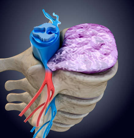 bulging: Spinal cord under pressure of bulging disc. Medically accurate 3D illustration