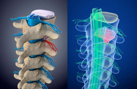 bulging: Spinal cord under pressure of bulging disc. Xray view. Medically accurate 3D illustration