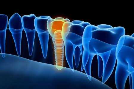 dentier: vue X-ray de prothèse avec implant. vue Xray. Médicalement précis illustration 3D Banque d'images