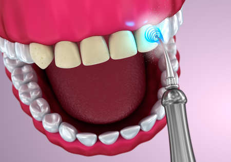 orthodontist: Teeth whitening, Medically accurate 3D illustration
