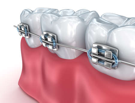 brace: Teeth with braces isolated on white. Medically accurate 3D illustration