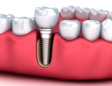 smiles teeth: Tooth human implant, Medically accurate 3D illustration white style