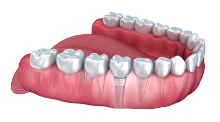 dent: Lower teeth and dental implant transparent render isolated on white. 3D illustration