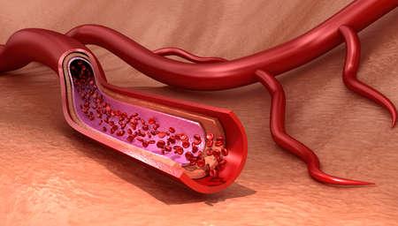 erythrocytes: Blood vessel sliced ??macro with erythrocytes, Medically accurate 3D illustration