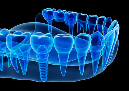 dentin: X-ray view of denture with implant, 3D illustration.