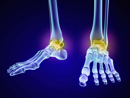 sprain: Skeletal foot - injuryd talus bone. Xray view. Medically accurate 3D illustration