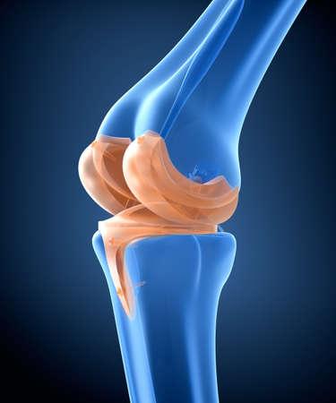 Rodilla y articulación de bisagra de titanio. vista de rayos X. ilustración 3D