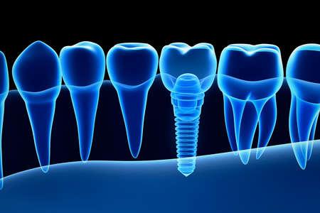 X 線表示での義歯をインプラントします。X 線を表示します。医学的に正確な 3 D イラスト 写真素材