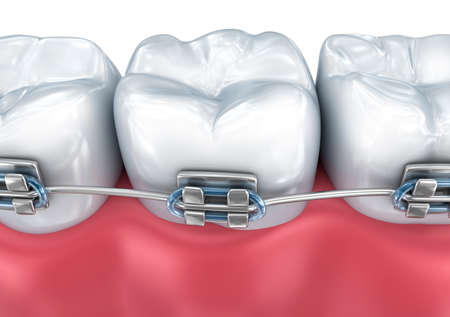fixation: Teeth with braces isolated on white. Medically accurate 3D illustration