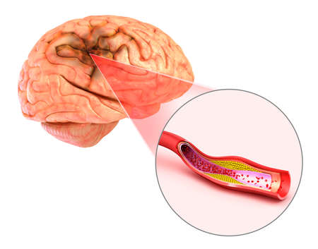 haemorrhage: Brain stroke: 3d illustration of the vessels of the brain and causes of stroke