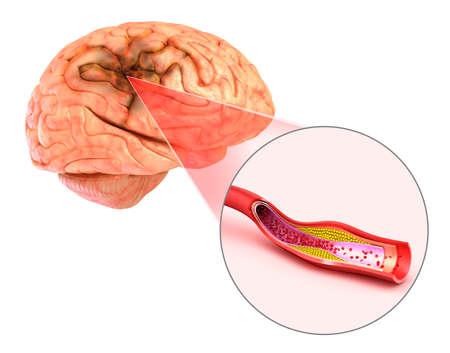 ictus cerebral: Ilustración 3D de los vasos del cerebro y causa de accidente cerebrovascular