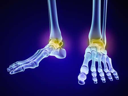 Esqueleto del pie - hueso astrágalo injuryd. vista de la radiografía. ilustración médica precisa en 3D Foto de archivo