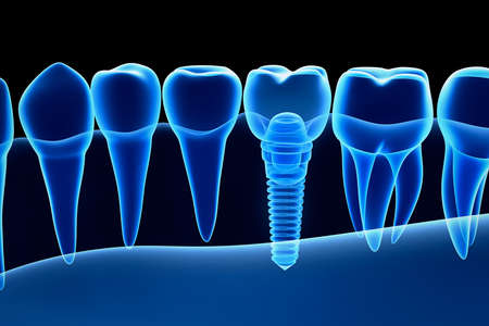 dentin: X-ray view of denture with implant. Xray view. Medically accurate 3D illustration
