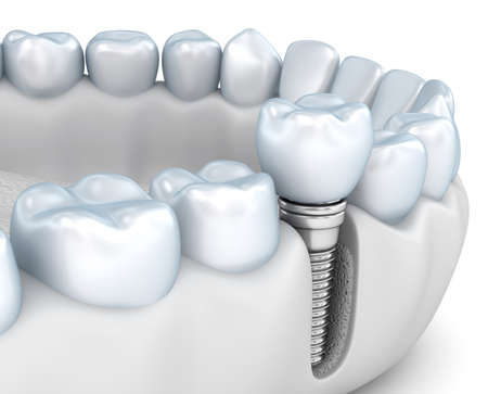 Tooth human implant, Medically accurate 3D illustration white style Reklamní fotografie