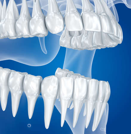 rentgen: Transparent scull and teeth, xray view. 3D illustration.