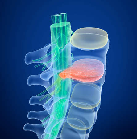 paralyze: Spinal cord under pressure of bulging disc. Xray view. Medically accurate 3D illustration