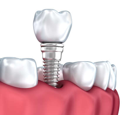 smiles teeth: Tooth implant, Medically accurate 3D illustration white style