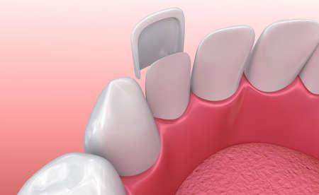 Impiallacciature dentali: Procedura di installazione porcellana impiallacciatura. illustrazione 3D