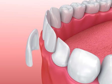 artificial model: Dental Veneers: Porcelain Veneer installation Procedure. 3D illustration