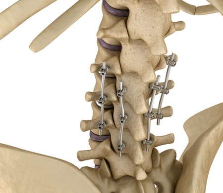 titanium: Spinal fixation system - titanium bracket. Medically accurate tooth 3D illustration