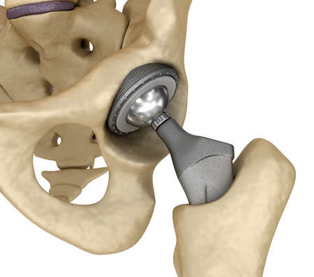Hip replacement implant installed in the pelvis bone. Medically accurate 3D illustration Standard-Bild