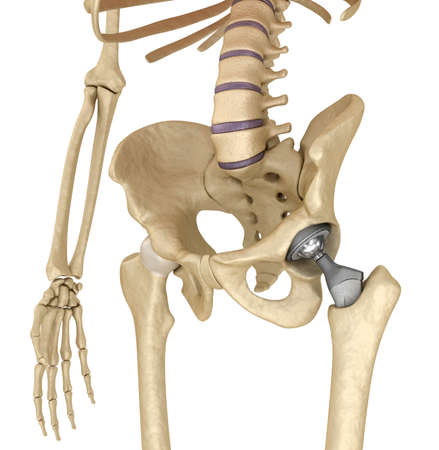 orthopedics: Hip replacement implant installed in the pelvis bone. Medically accurate 3D illustration Stock Photo
