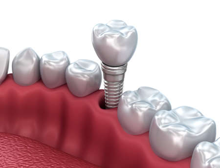 Tooth implant, Medically accurate 3D illustration white style