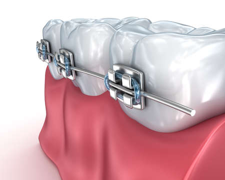 dental assistant: Teeth with braces isolated on white. Medically accurate 3D illustration