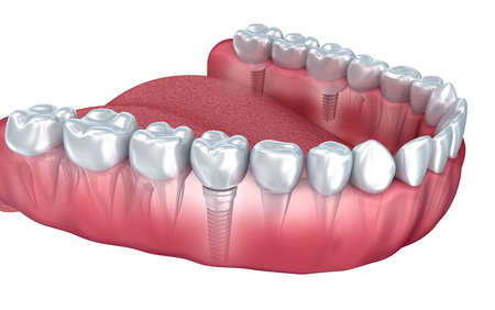 teeth white: Lower teeth and dental implant transparent render isolated on white. 3D illustration