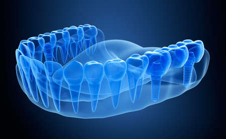 implanted: X-ray view of denture with implant. Xray view. Medically accurate 3D illustration