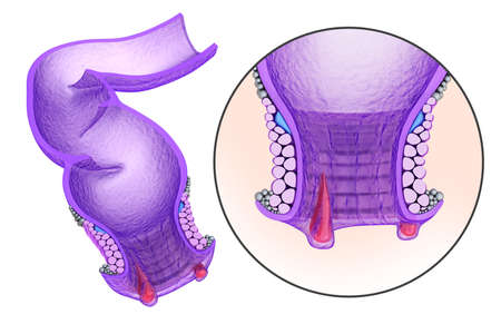 Hemorrhoids: Anal disorders in details, xray view. Medical accurate 3D illustration Stock Photo