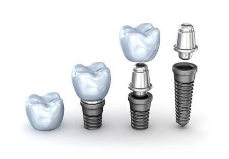 Tand implantaten geplaatst die op een witte achtergrond 3D illustratie Stockfoto